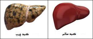 کدام کبد برایتان خوشایندتر است ؟ (درمان کبد چرب)