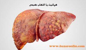 نمونه ای از بیماری های کبدی( کبد دچار هپاتیت)