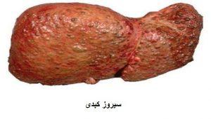 نمونه ای از بیماری های کبدی( کبد دچار سیروز )